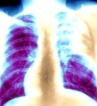 як визначити туберкульоз легенів