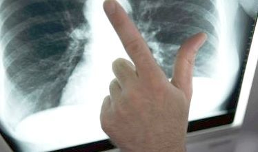 як проявляється туберкульоз легенів