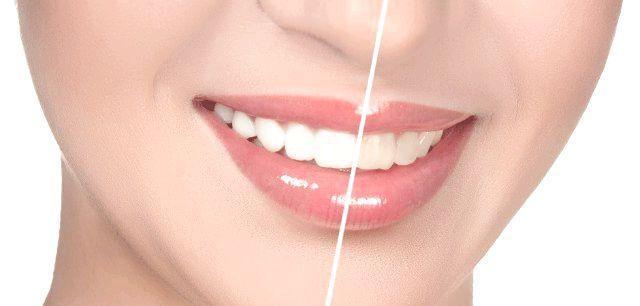 вініри на криві зуби