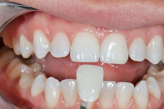 вініри в стоматології