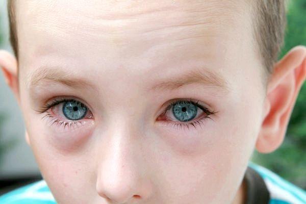 вірусний коньюктівіт лікування симптоми у дітей і дорослих
