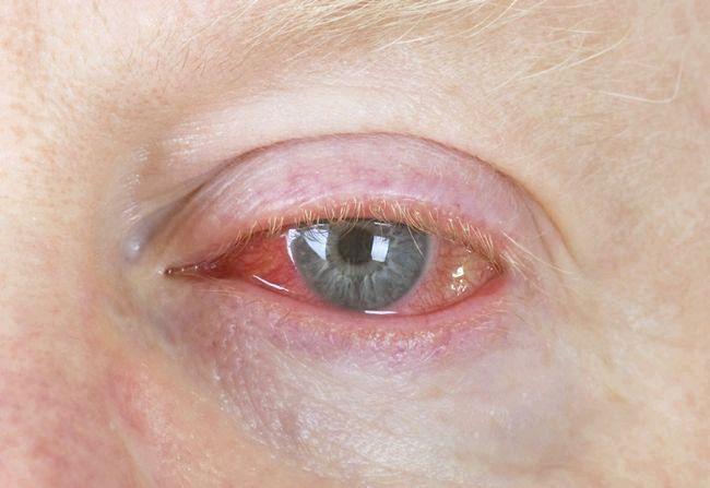 вірусний кон'юнктивіт лікування симптоми причини