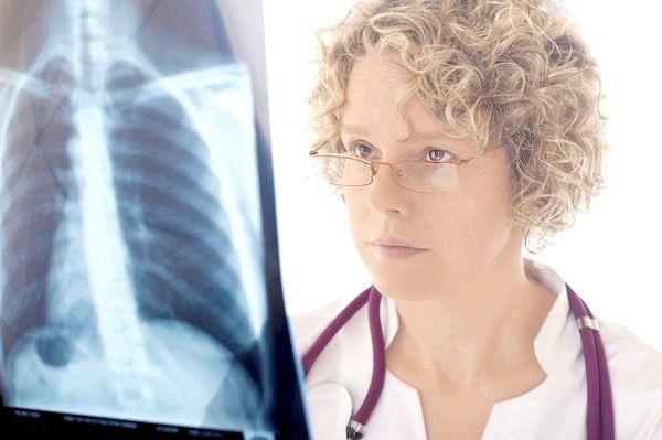Позалікарняна пневмонія історія хвороби