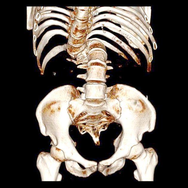 вроджена аномалія хребта