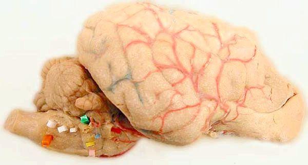 задній мозок функції