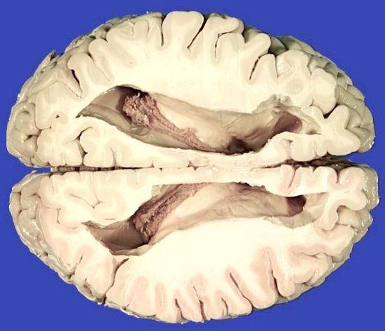 збільшені шлуночки головного мозку