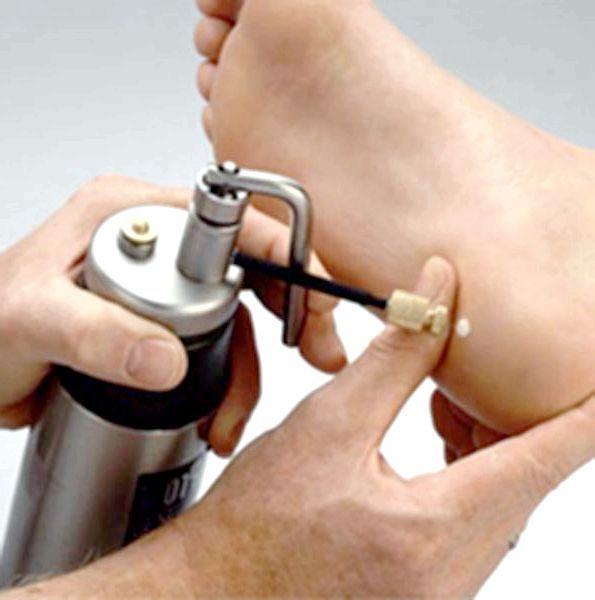 лікування рідким азотом