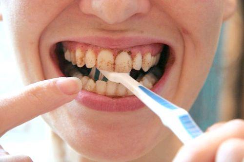 зубний порошок відбілюючий